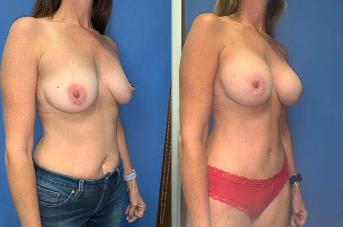 radical abdominoplasty / sub glandular augmentation patient perth oblique