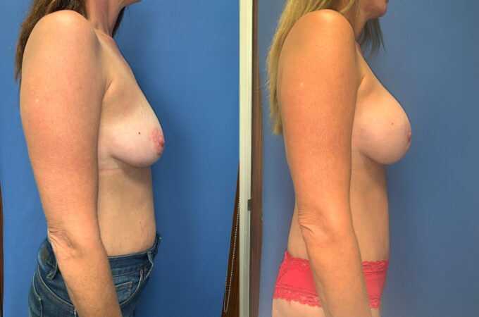 radical abdominoplasty / sub glandular augmentation patient perth side 2