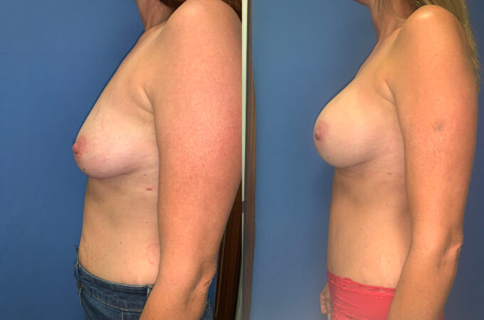 radical abdominoplasty / sub glandular augmentation patient perth side