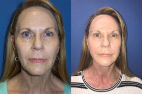 facelift patient perth front