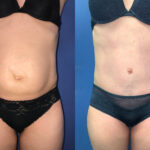Patient 8 radical abdominoplasty Perth (front)