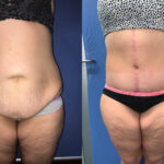 Patient 8 abdominoplasty Perth (front)