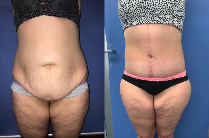 Patient 8 abdominoplasty Perth (front)