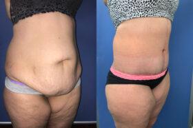 Patient 8 abdominoplasty Perth (oblique 2)
