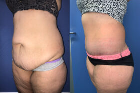 Patient 8 abdominoplasty Perth (oblique)