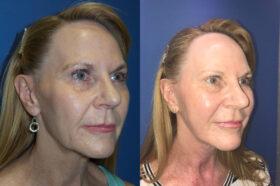 facelift patient perth oblique
