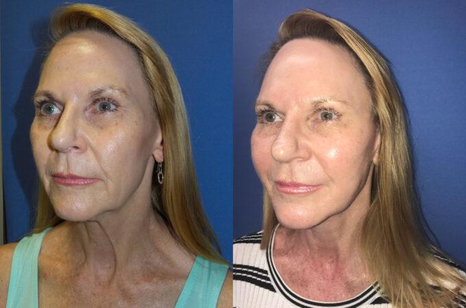 facelift patient perth oblique 2