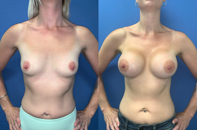 bilateral submuscular breast augmentation perth front