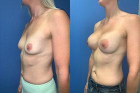 bilateral submuscular breast augmentation perth oblique