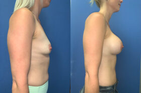 bilateral submuscular breast augmentation perth side 2