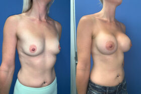 bilateral submuscular breast augmentation perth oblique 2