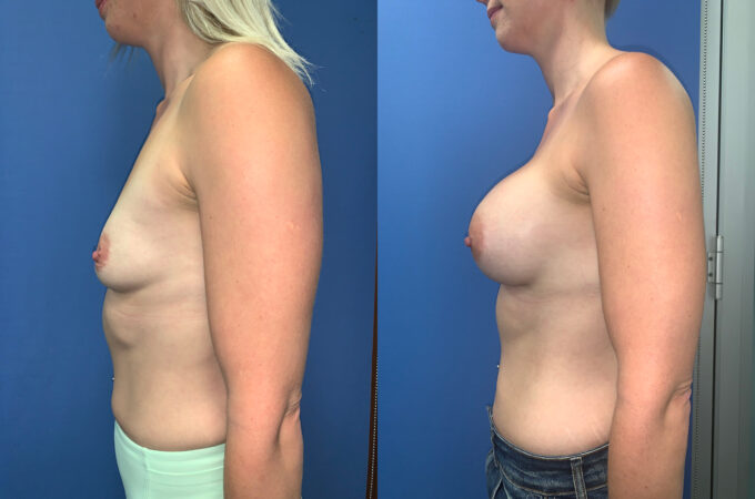 bilateral submuscular breast augmentation perth side