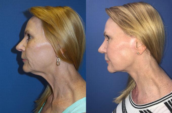 facelift patient perth side