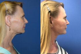 facelift patient perth side 2