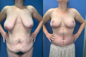 body contouring perth front