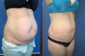 oblique 2 radical abdominoplasty perth