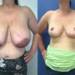Patient 22 Breast Reduction Perth front