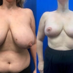 Patient 21 Breast Reduction Perth front
