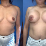 subglandular breast augmentation surgery perth front