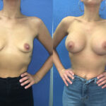 Patient 51 Breast Augmentation Perth front
