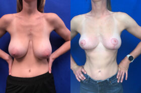 Patient 23 Breast Reduction Perth front
