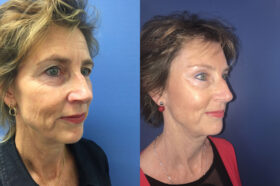 Blepharoplasty Perth oblique