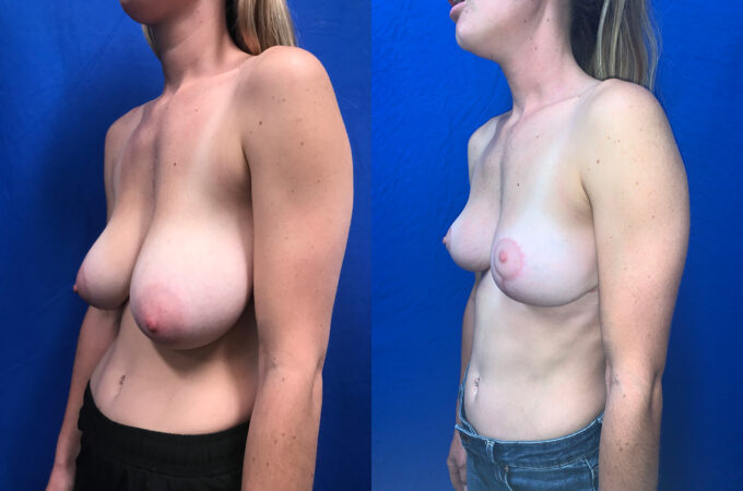 Patient 23 Breast Reduction Perth oblique 2