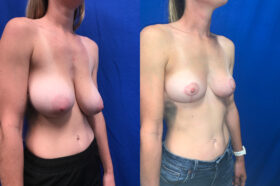 Patient 23 Breast Reduction Perth oblique