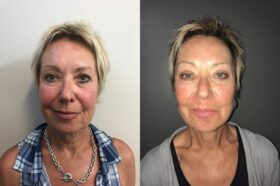 facelift patient perth before after front