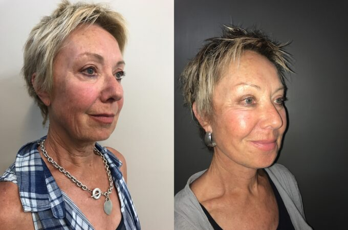 facelift patient perth before after oblique