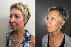 facelift patient perth before after oblique 2
