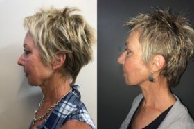 facelift patient perth before after side 2