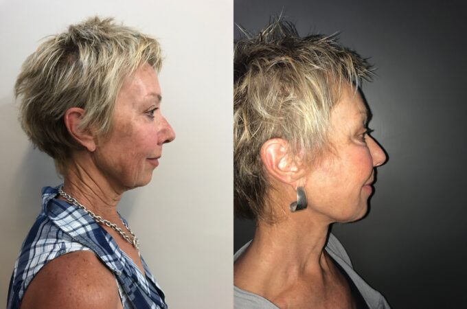 facelift patient perth before after side