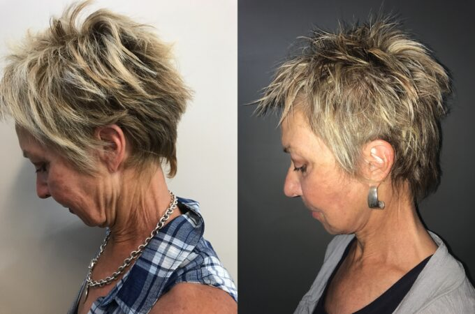 facelift patient perth before after down 2