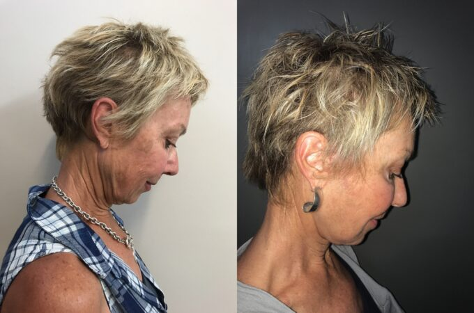 facelift patient perth before after down 1