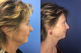 Blepharoplasty Perth side