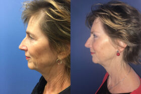 Blepharoplasty Perth side 2