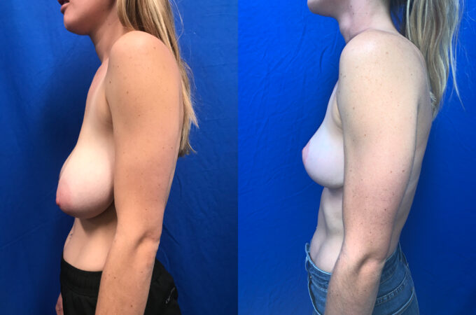 Patient 23 Breast Reduction Perth side 2