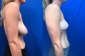 Patient 23 Breast Reduction Perth side