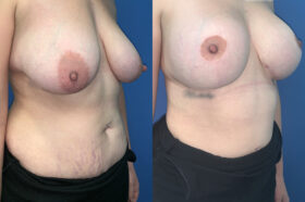 breast augmentation and lift perth oblique 2