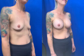 breast augmentation perth oblique