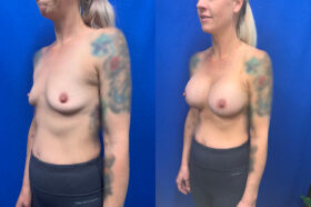 breast augmentation perth oblique 2