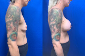 breast augmentation perth side
