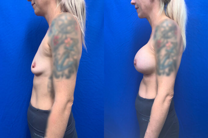 breast augmentation perth side 2
