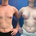 Patient 54 Breast Augmentation Perth front