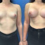 Patient 56 Breast Augmentation Perth front