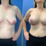Patient 57 Breast Augmentation Perth front
