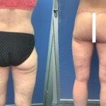 body contouring perth back