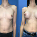 Patient 59 Breast Augmentation Perth front