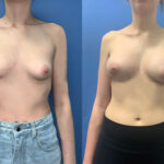 Patient 58 Breast Augmentation Perth front